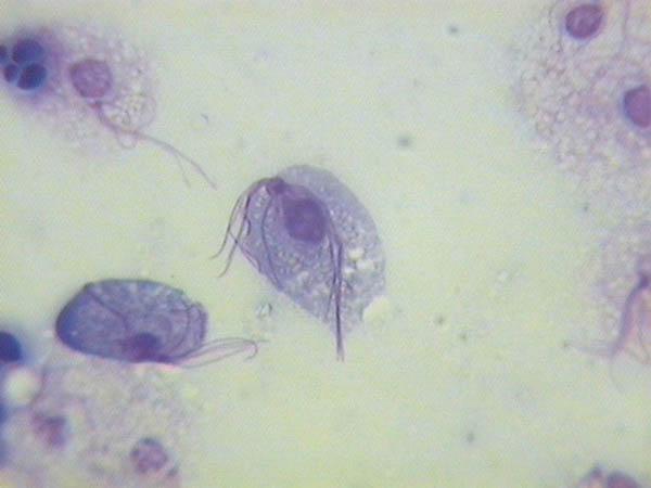 Rzęsistek pochwowy po mikroskopem.
