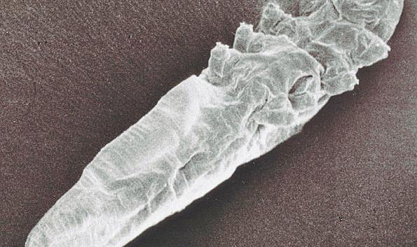 595px-Demodex-mite-scanning-electron-microscope-image-2