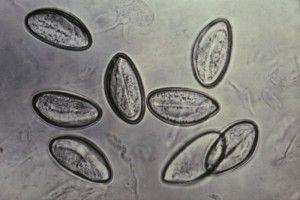 Enterobius_vermicularis